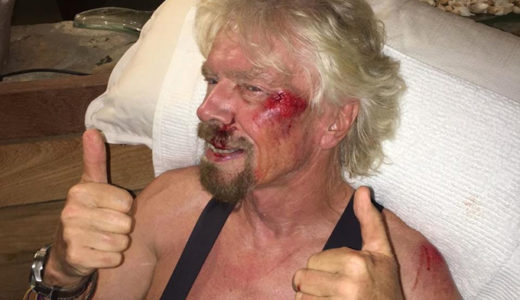 [217] Virgin Airways CEO Branson injured in bicycle accident